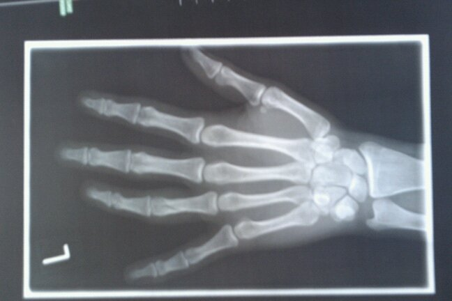 Fingerbruch, ganze Hand