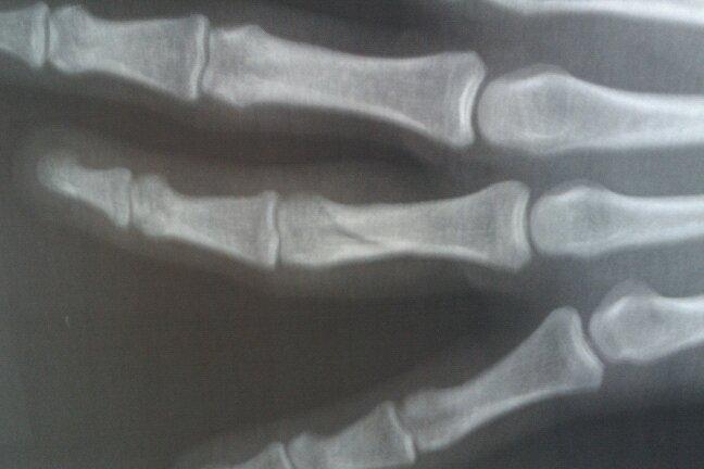 Fingerbruch, im Detail